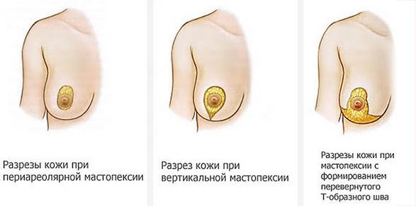 разрезы при мастопексии