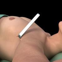 Маммопластика через аксиллярный доступ