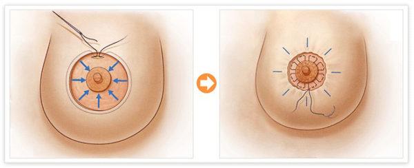 разрез при мастопексии вокруг ареолы соска