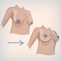 циркульная подтяжка груди