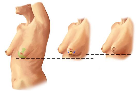 мастопексия классическая