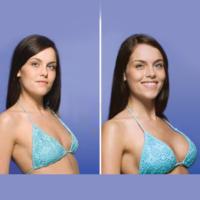пластика груди - до и после