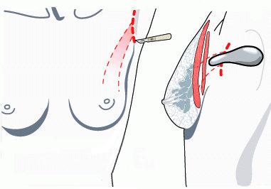 допуск - увеличение груди - подмышечная впадина