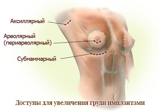разные доступы для грудных имплантов