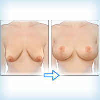 эндопротезирование груди совместно с подтяжкой