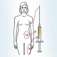пересадка жира в молочные железы
