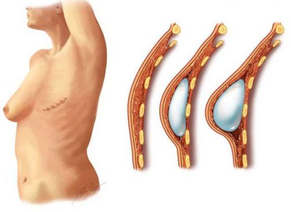 установка импланта после мастэктомии