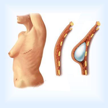 Реабилитация после подкожной мастэктомии и установки импланта