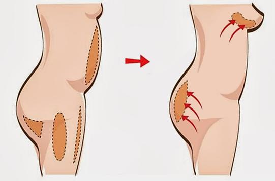 метод липофилинг