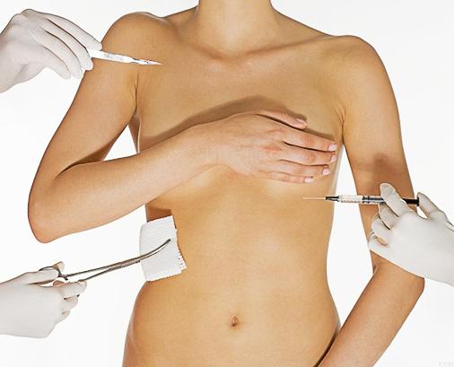 коррекция после неудачной маммопластики