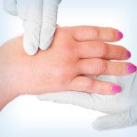 отек руки вследствие нарушения оттока лимфы