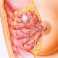 иллюстрация мастопатии