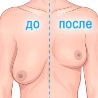 подтяжка грудных желез - до и после