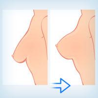 мастопексия совместно с эндопротезированием, увеличением груди