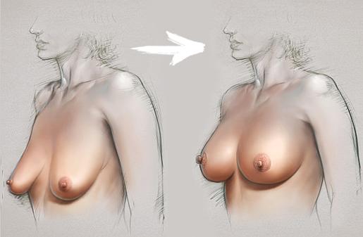 мастопексия с увеличением молочных желез