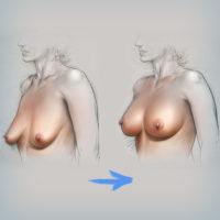 мастопексия и увеличение молочных желез одновременно