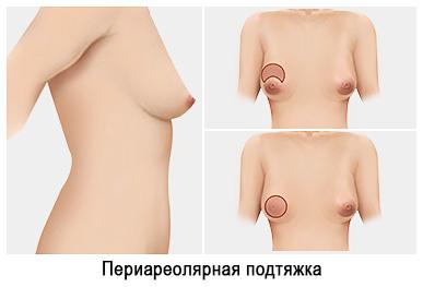Подтяжка груди периареольная