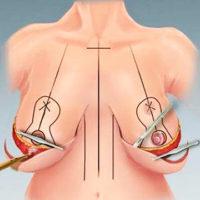 процесс подтяжки груди
