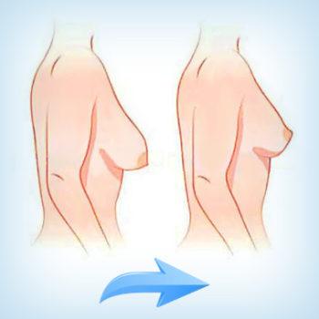 подтяжка груди - до и после