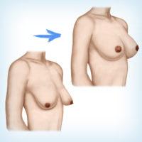 подтяжка плюс увеличение груди