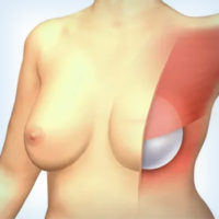 эндопротез после мастэктомии