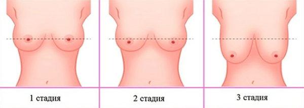 3 стадии обвисания груди