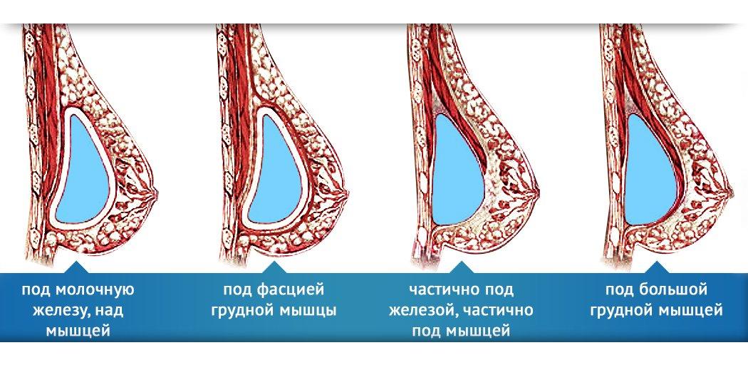 способы расположения грудного протеза