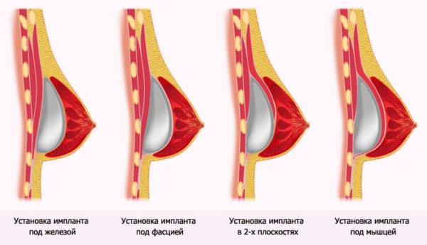 различное расположение импланта