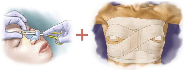 совместная ринопластика и маммопластика