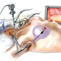 эндоскопическая маммопластика