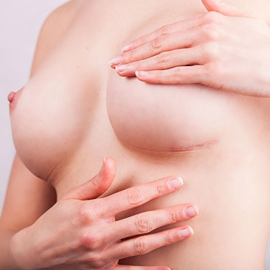 шрамы после маммопластики