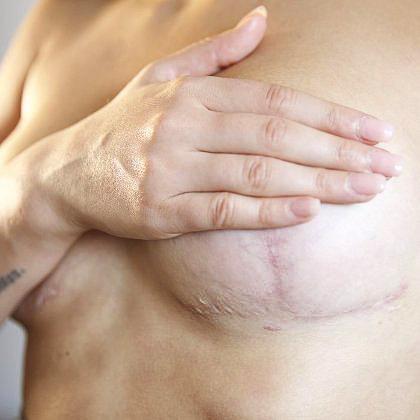 рубцы, шрамы после операции по подтяжке груди