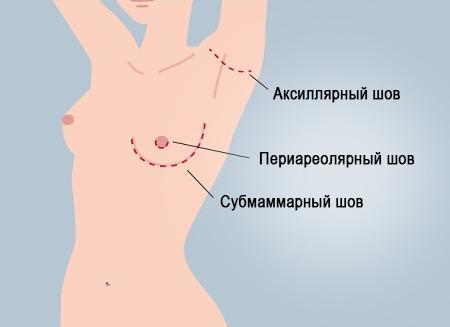 швы после увеличения молочных желез