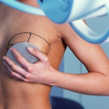 длительность маммопластики