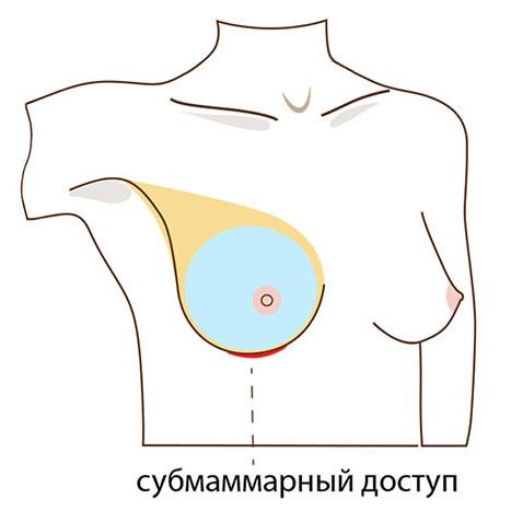 доступ через разрез под грудью для увеличения груди