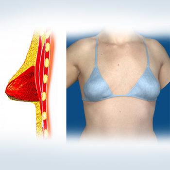 тубулярность молочных желез