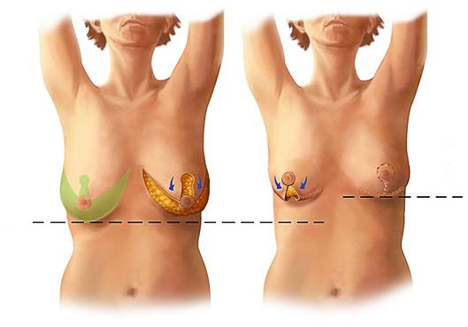 мастопексия редукционная