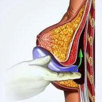 увеличение женской груди через сосок
