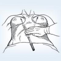 увеличение женской груди через пупок