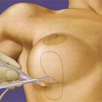субмаммарный метод увеличения груди