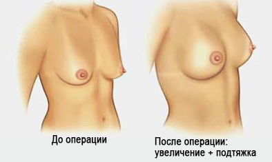 увеличение груди и мастопексия - совместная операция