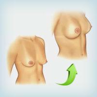 совместная операция - увеличение груди и мастопексия