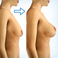 увеличение и подтяжка молочных желез