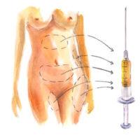 увеличение размера груди стволовыми клетками