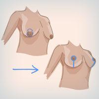 мастопексия - вертикальный разрез