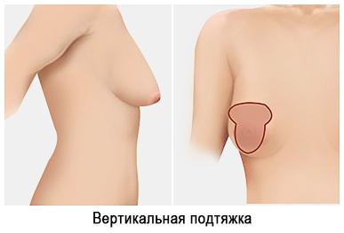 Подтяжка груди вертикальная