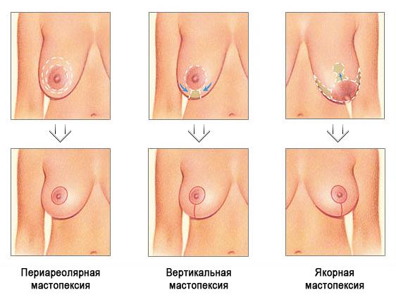 разрезы в мастопексии в зависимости от степени птоза