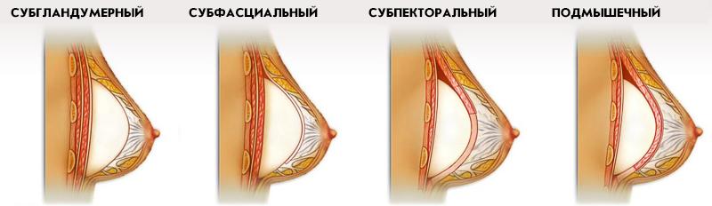 виды установки грудного импланта