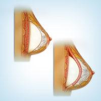 разные способы установки силиконового импланта