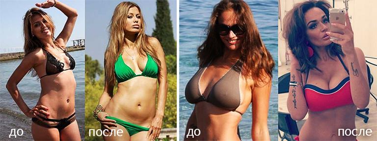Пластика груди Виктории Бони, Алены Водонаевой